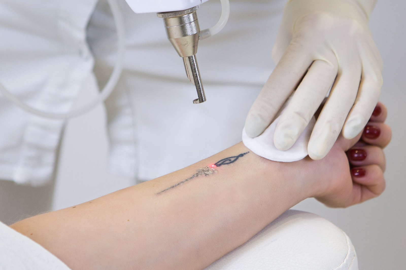 Zeltiq Coolsculpting Is An Alternative To Liposuction